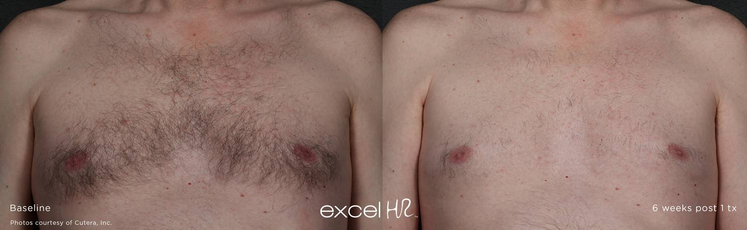 excel HR Before After