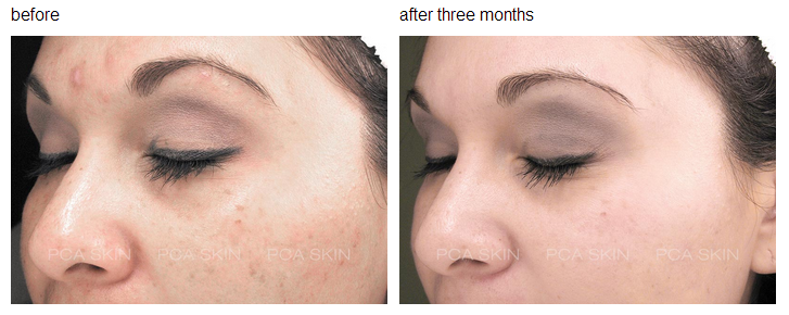 Chemical Peels New Jersey NJ - Anthony Sparano, MD