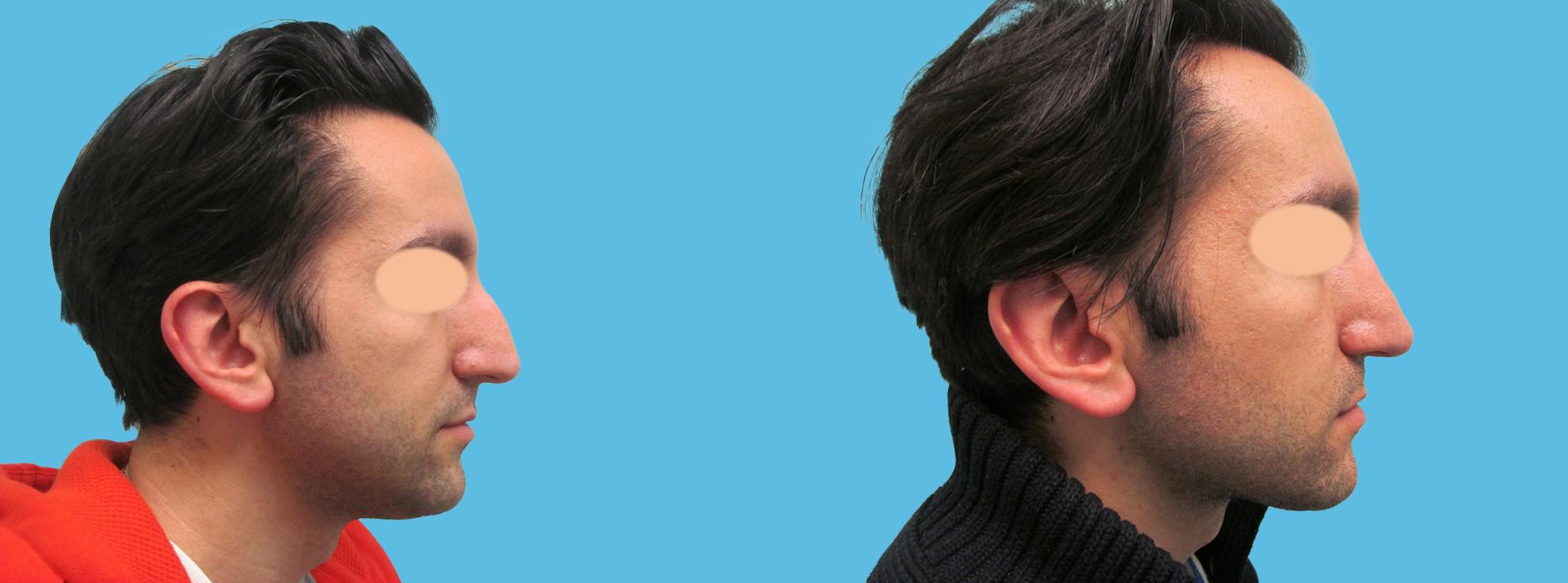 1 year rhinoplasty (long nose, high radix, angular features)