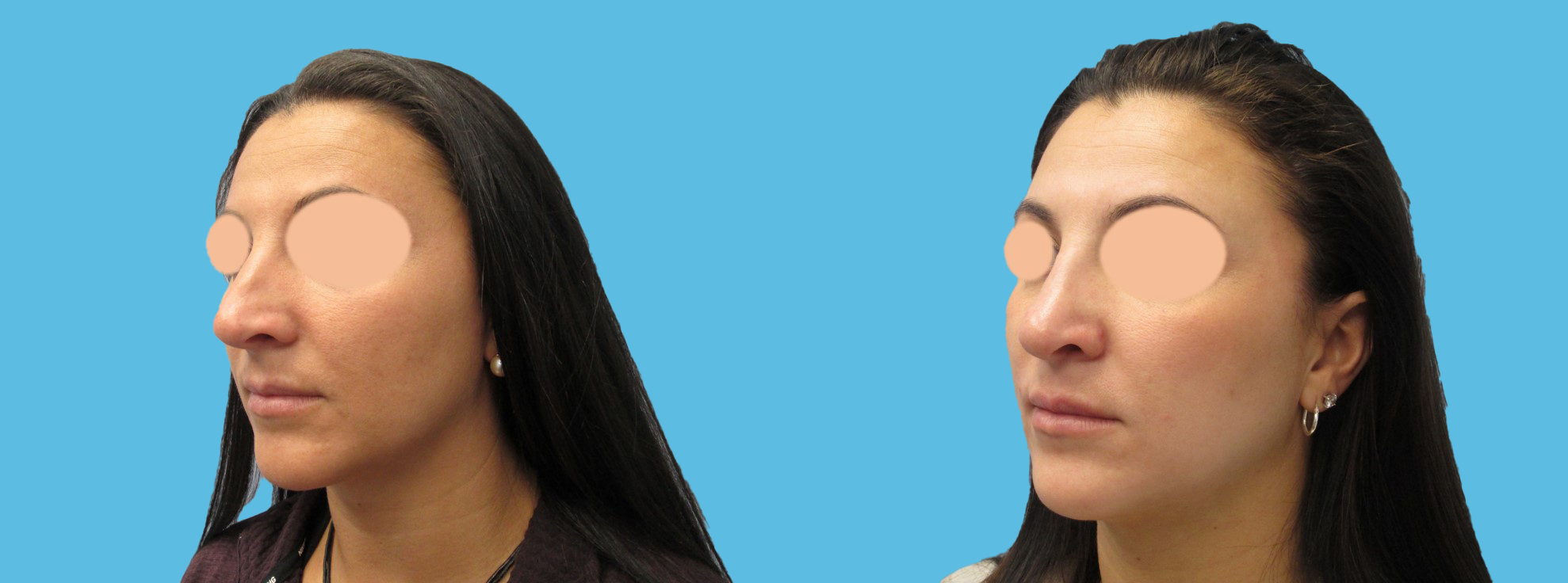 1 year rhinoplasty (severely crooked nose)