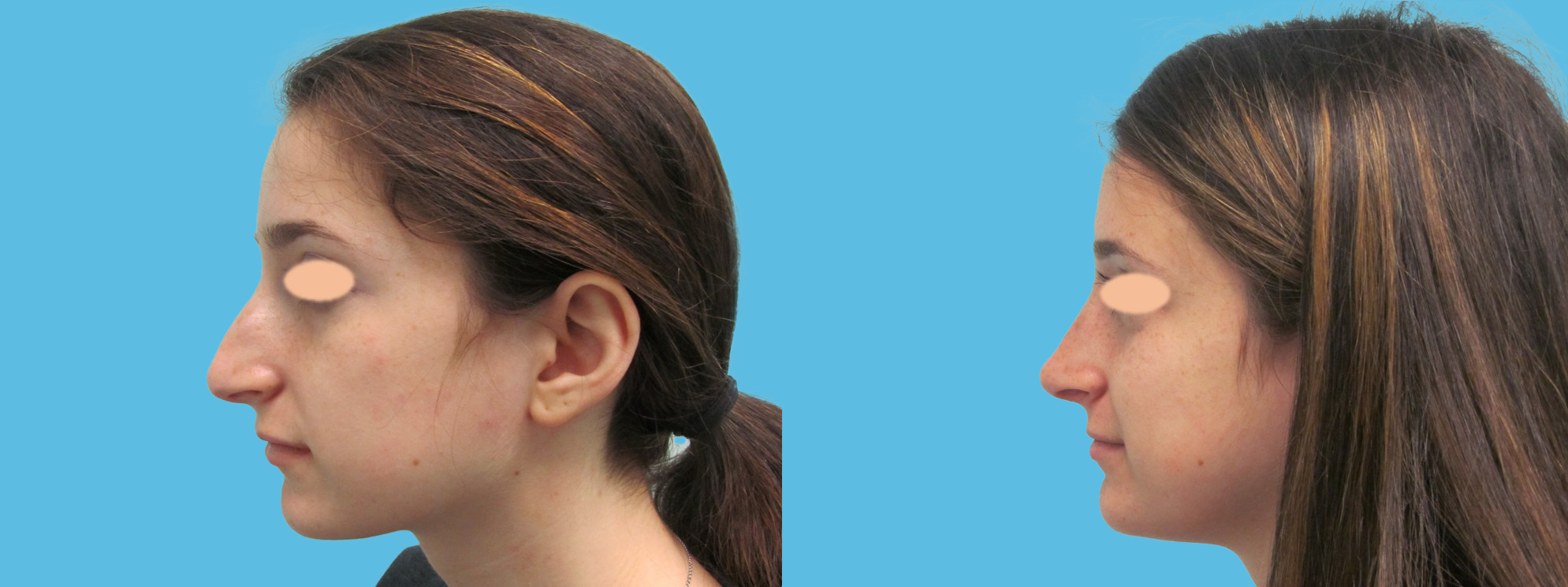 1 year rhinoplasty (convex, over-projected nose, thin skin)