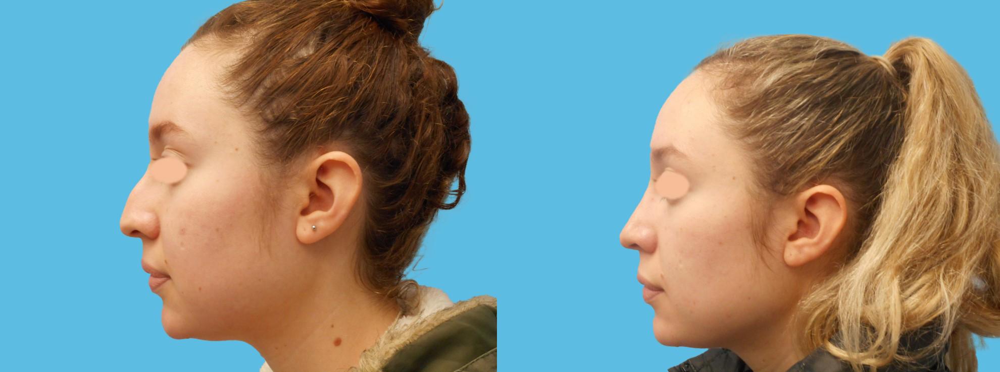 1 year rhinoplasty