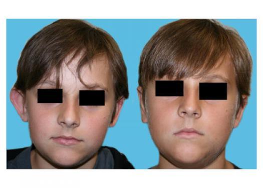 Bilateral otoplasty (6 weeks post-op)